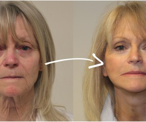 Facelift_before-after